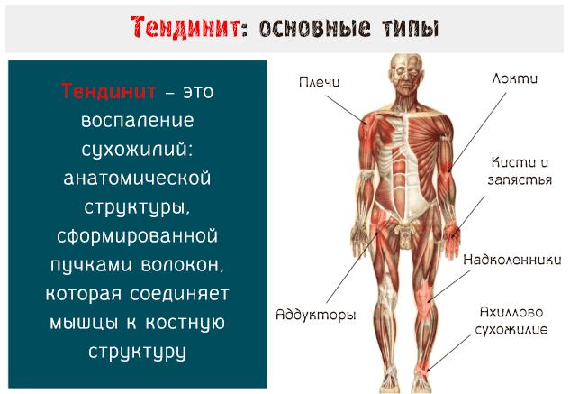 Тендинит