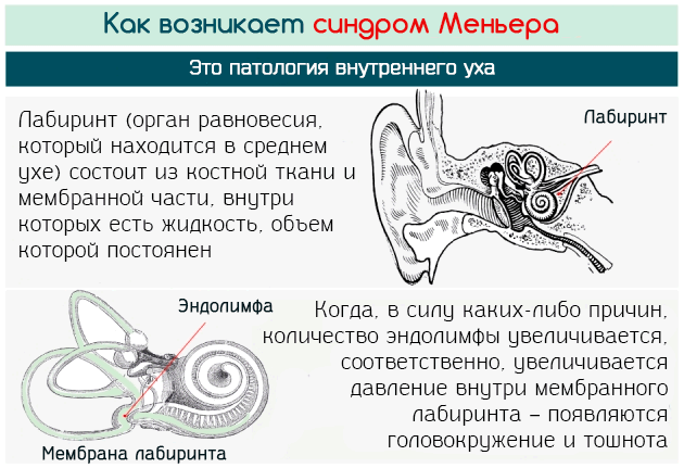 Синдром Меньера