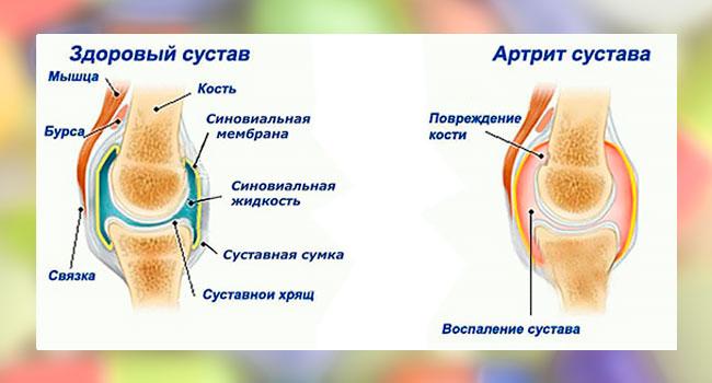 Ревма- Артрит - Ревматология - Здоровье orientandoo.com