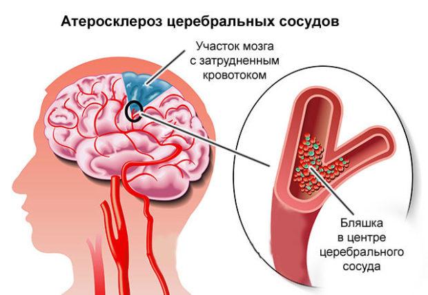 Церебральный атеросклероз сосудов мозга