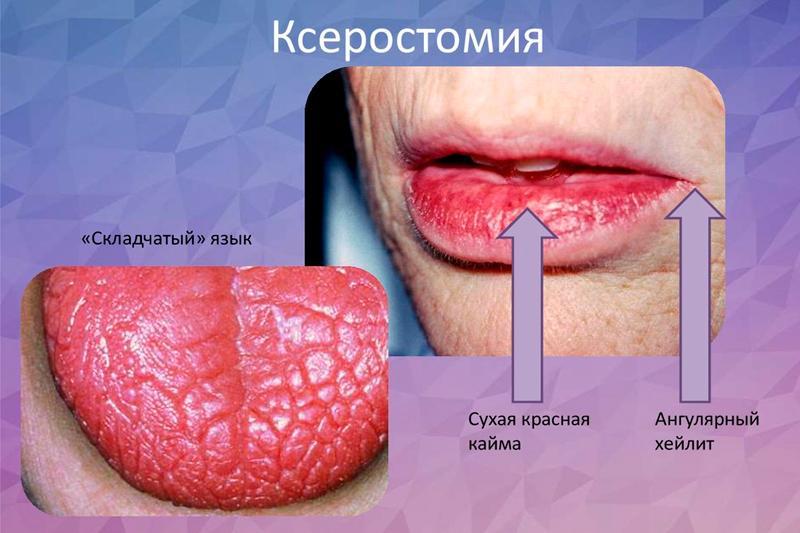 Ксеростомия