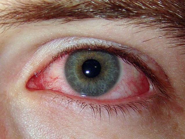 Гиперемия конъюнктивы глаза