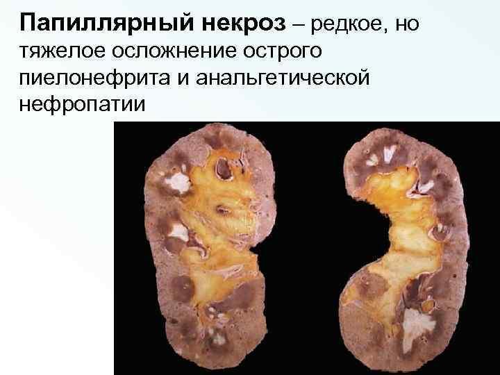 Папиллярный некроз