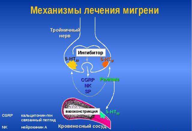 Механизм лечения мигрени
