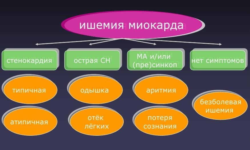 Классификация ишемии миокарда