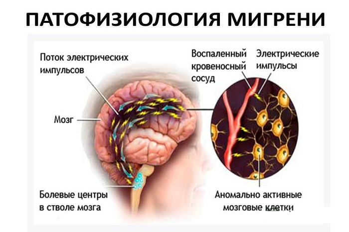Процесс развития мигрени
