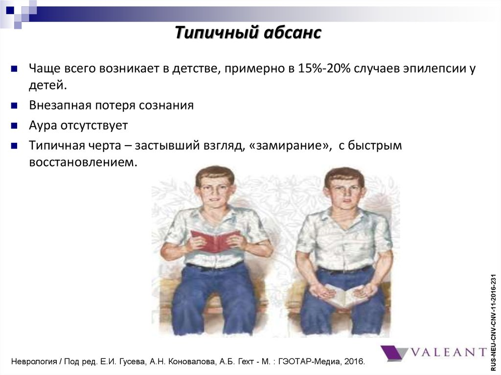 Симптоматика типичного абсанса