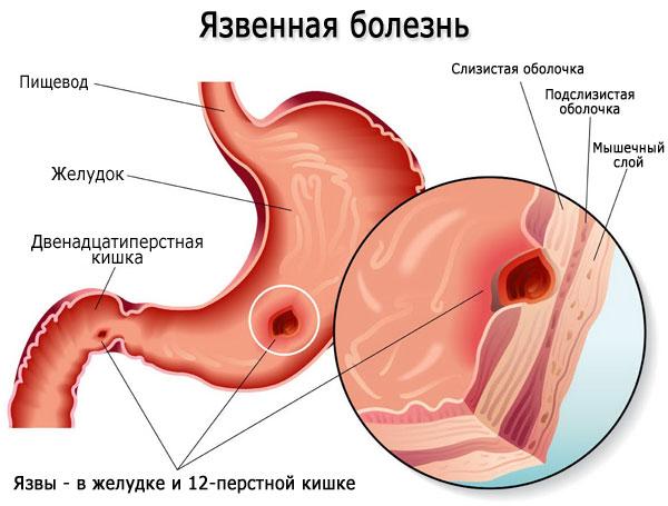Язва органов ЖКТ