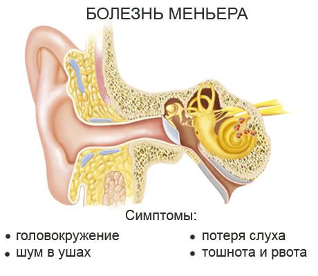 Симптомы болезни Меньера