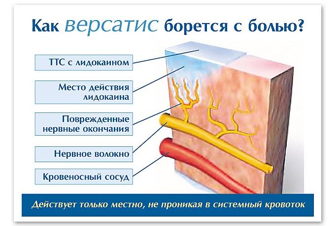 Особенности действия пластыря Версатис