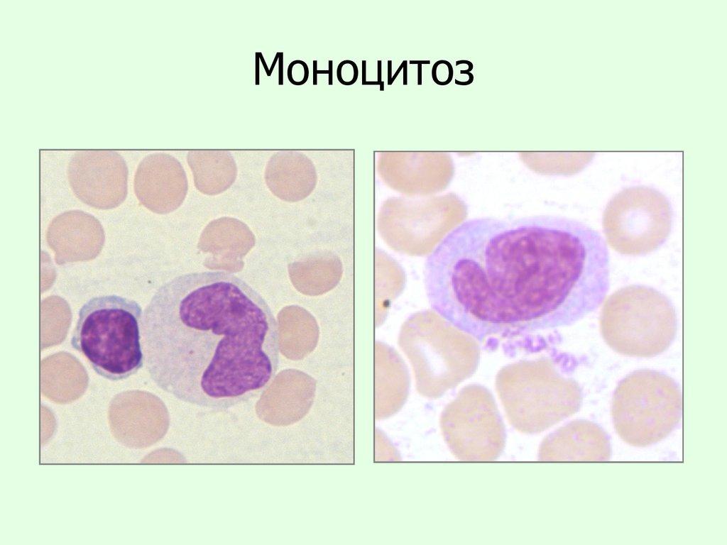 Моноцитоз