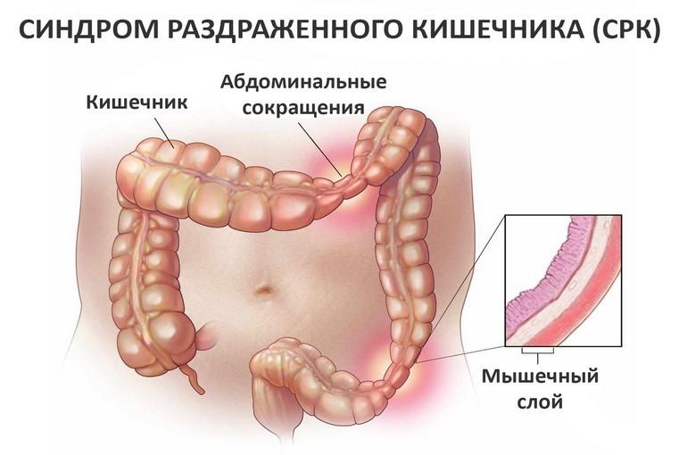 Синдром раздраженного кишечника;