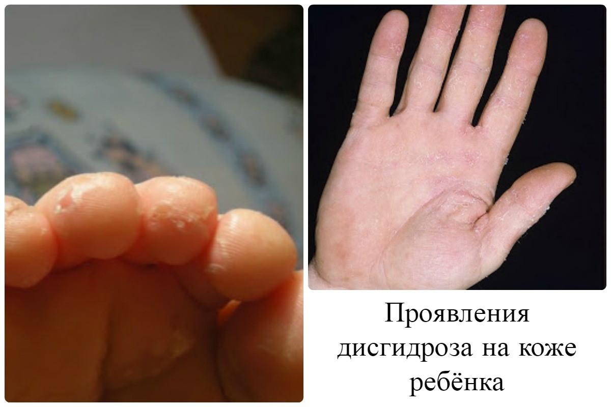 Дисгидроз