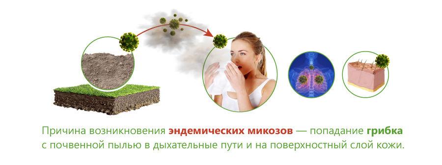 Причины развития эндемического микоза