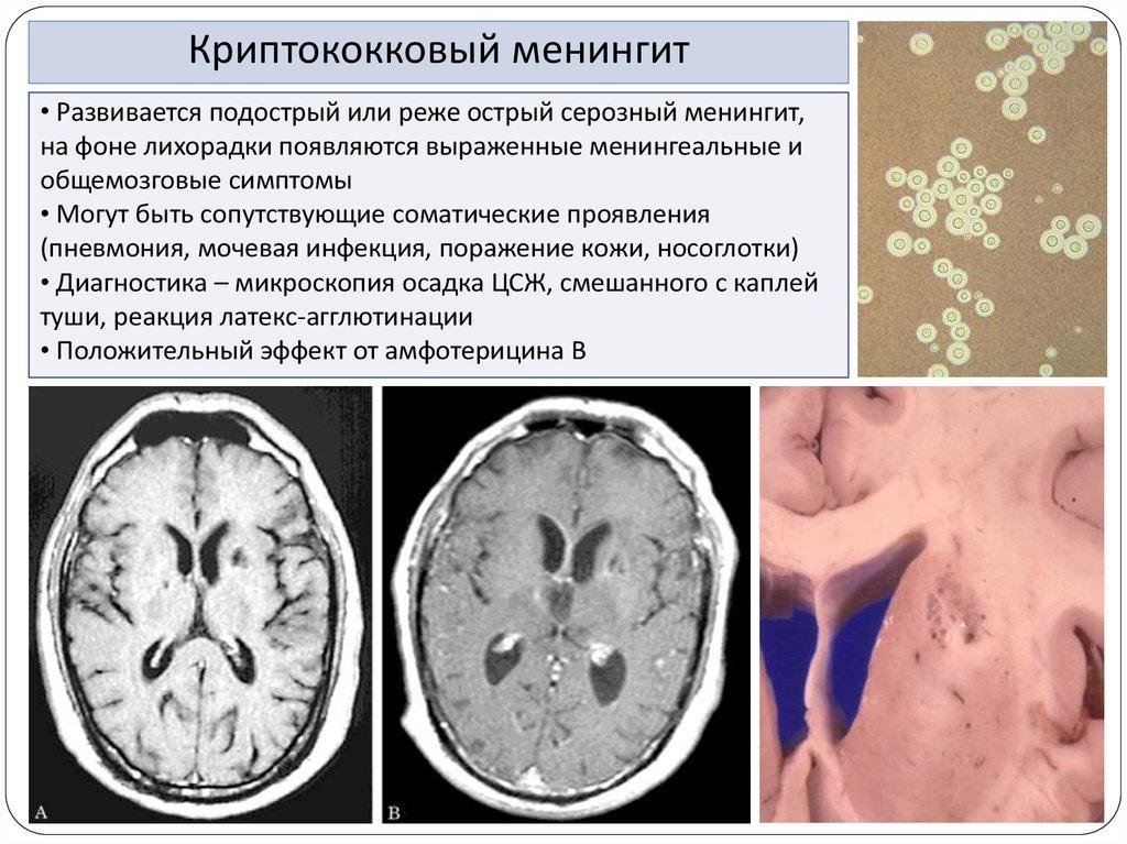 Криптококковый менингит