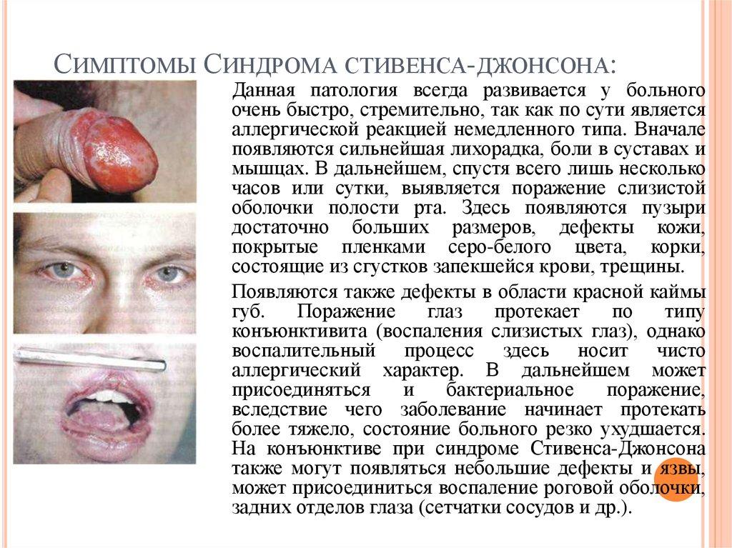 Симптомы диндрома Стивенса-Джонсона